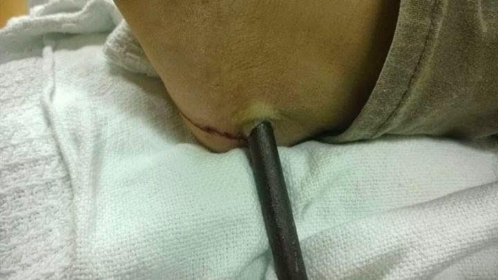female legs punctured metal, iron punctured foot, Ngeri! Kaki Wanita Tercucuk Besi, Kaki Tercucuk Paku, Besi Tembus Kaki,