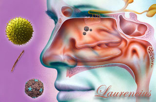 Pengobatan-penyakit-sinusitis