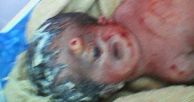 . ولادة طفل بعين واحدة وأنف مسمار داخل مستشفى ببنى سويف