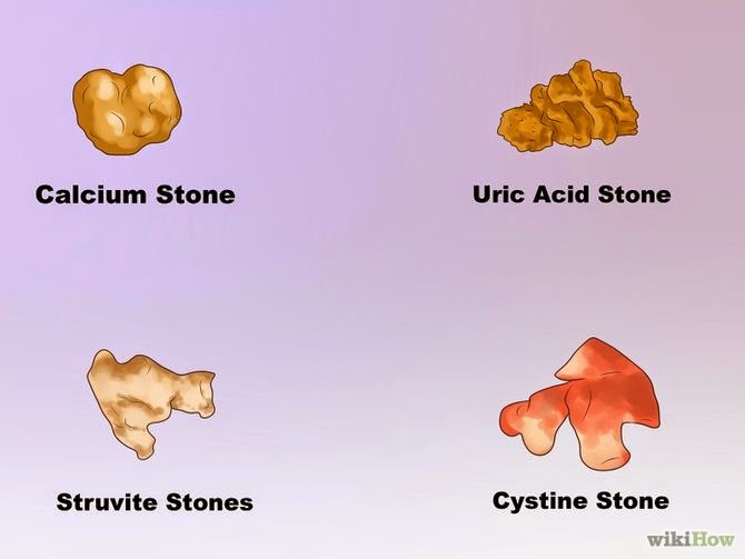 Jamillah Khan's HSC4233 Blog: Types of Kidney Stones