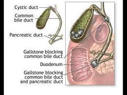 Colecistitele acute