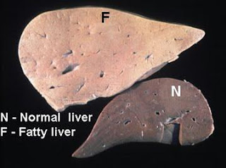 Fatty Liver Treatment - Eating the Right Foods to Lose That Fatty Liver