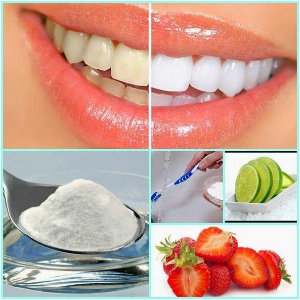 Nia blanquea tus dientes en casa - Como blanquear los dientes en casa ...