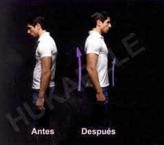Curvas de columna vertebral de pechuga pesada