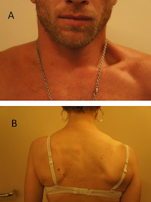 Une forte douleur à droit au côté sur le dos à la grossesse