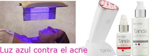 nuevos tratamientos contra el acne