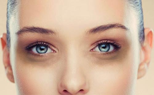 Cara Mudah Hilangkan Lingkaran Gelap Bawah Mata