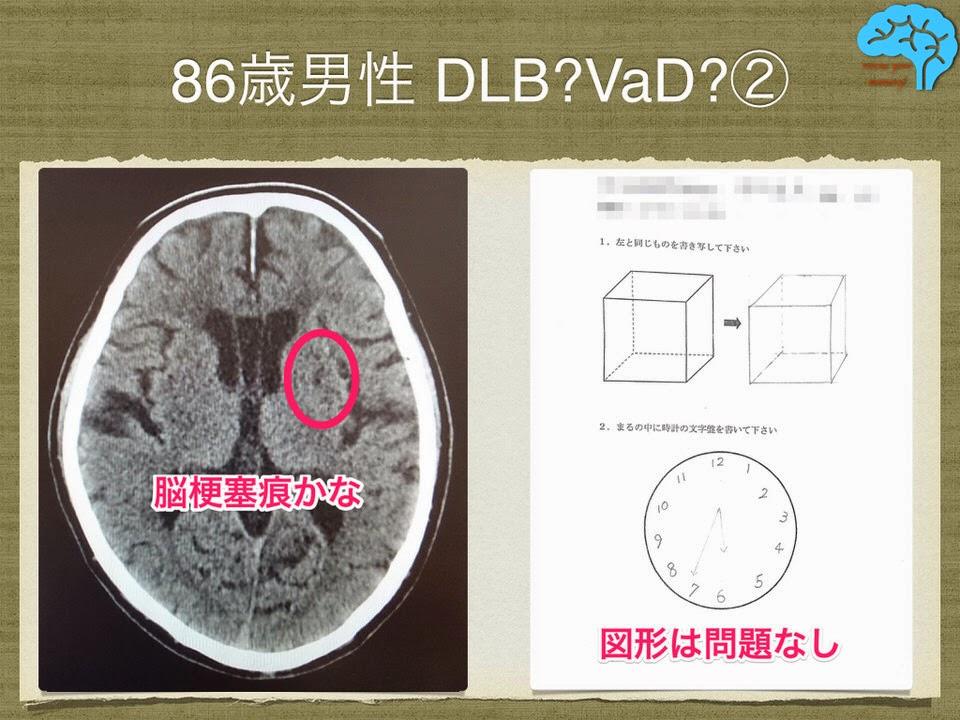 CTで脳梗塞を認めた。時計描画と透視立方体模写は問題なし。