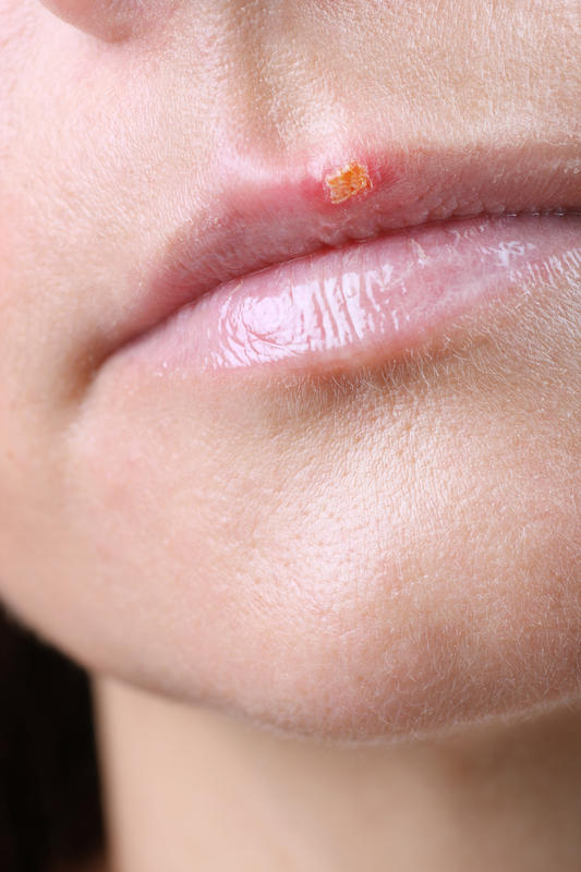 Traditional herpes treatment of