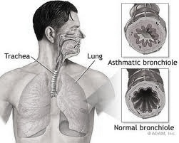 obat tradisional penyakit asma