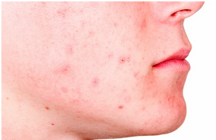 Homeopathic acne