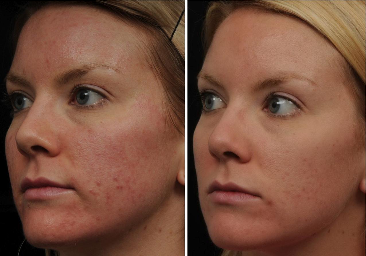 Acne Scar Laser Skin Resurfacing