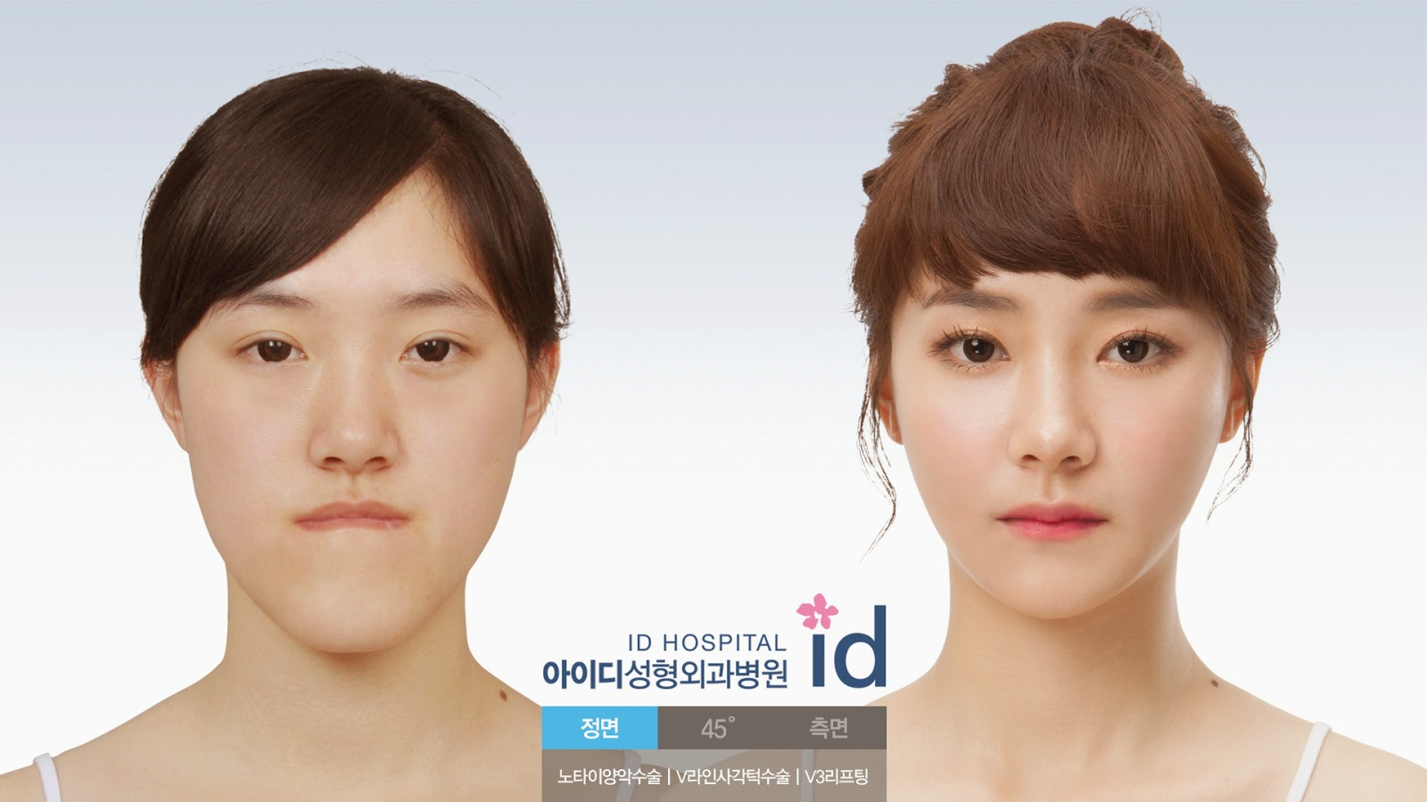 ID Hospital Korea Plastic Surgery: Korea Orthognathic Surgery ...