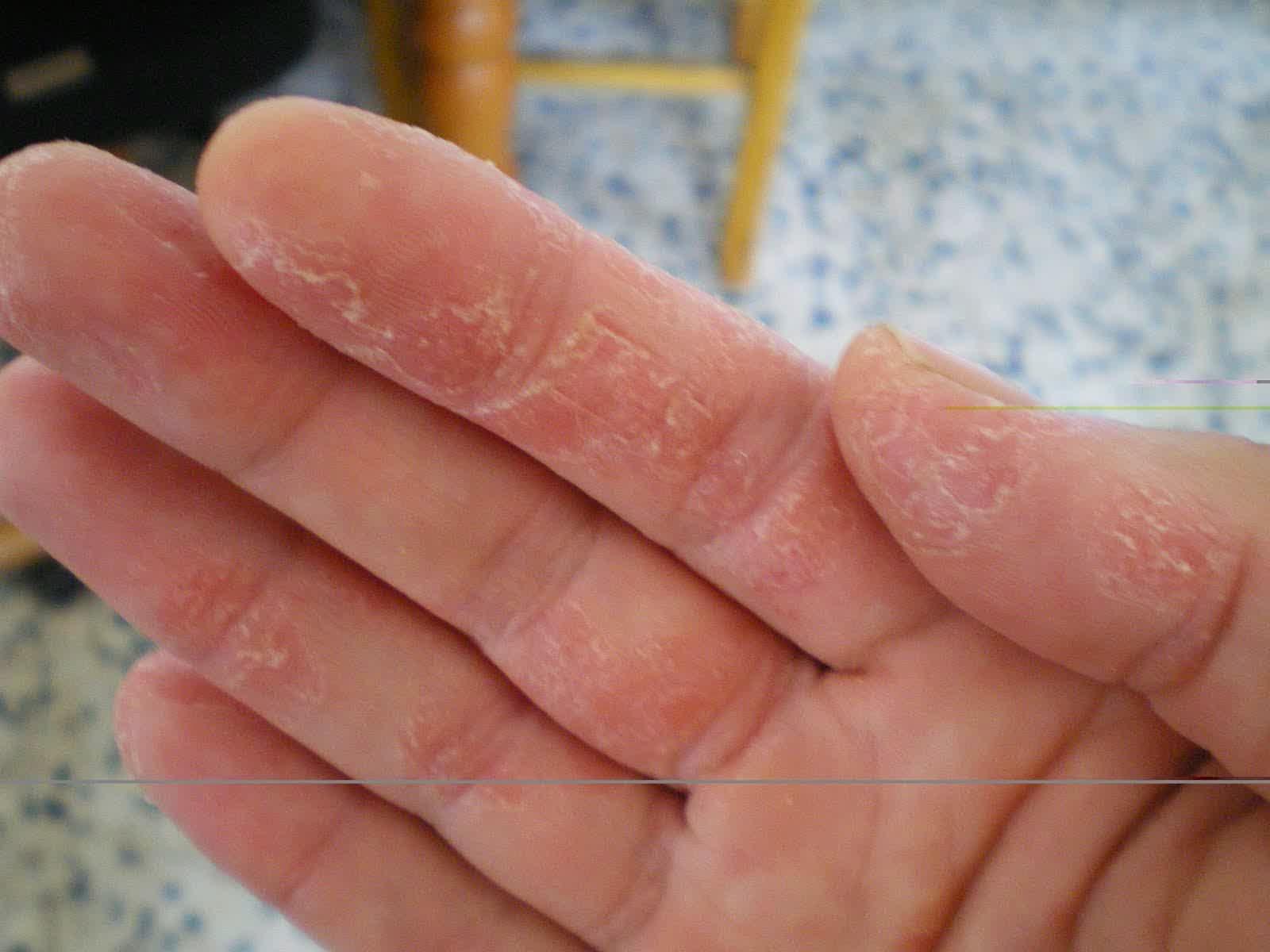 cara melembutkan dan menghaluskan telapak tangan secara alami
