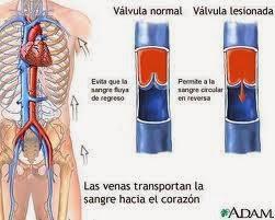 Las venas varicosas, sintomas, tratamientos y dieta de prevención