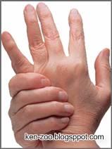 Cara Mengatasi Nyeri Sendi Arthritis