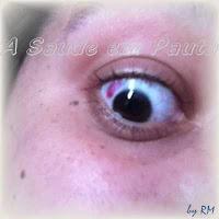 O Olho Humano. Estrutura e organização