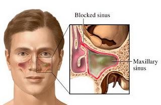 Obat Herbal Kanker Paranasal Sinus