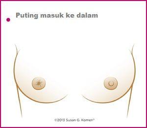 19 Ciri Ciri Kanker Payudara (Dilengkapi Gambar)