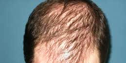 In dermatologia la perdita di capelli è definita alopecia. Esistono tante  possibili cause che determinano la perdita di capelli tra per esempio  alcune ... 23bb01efa85e