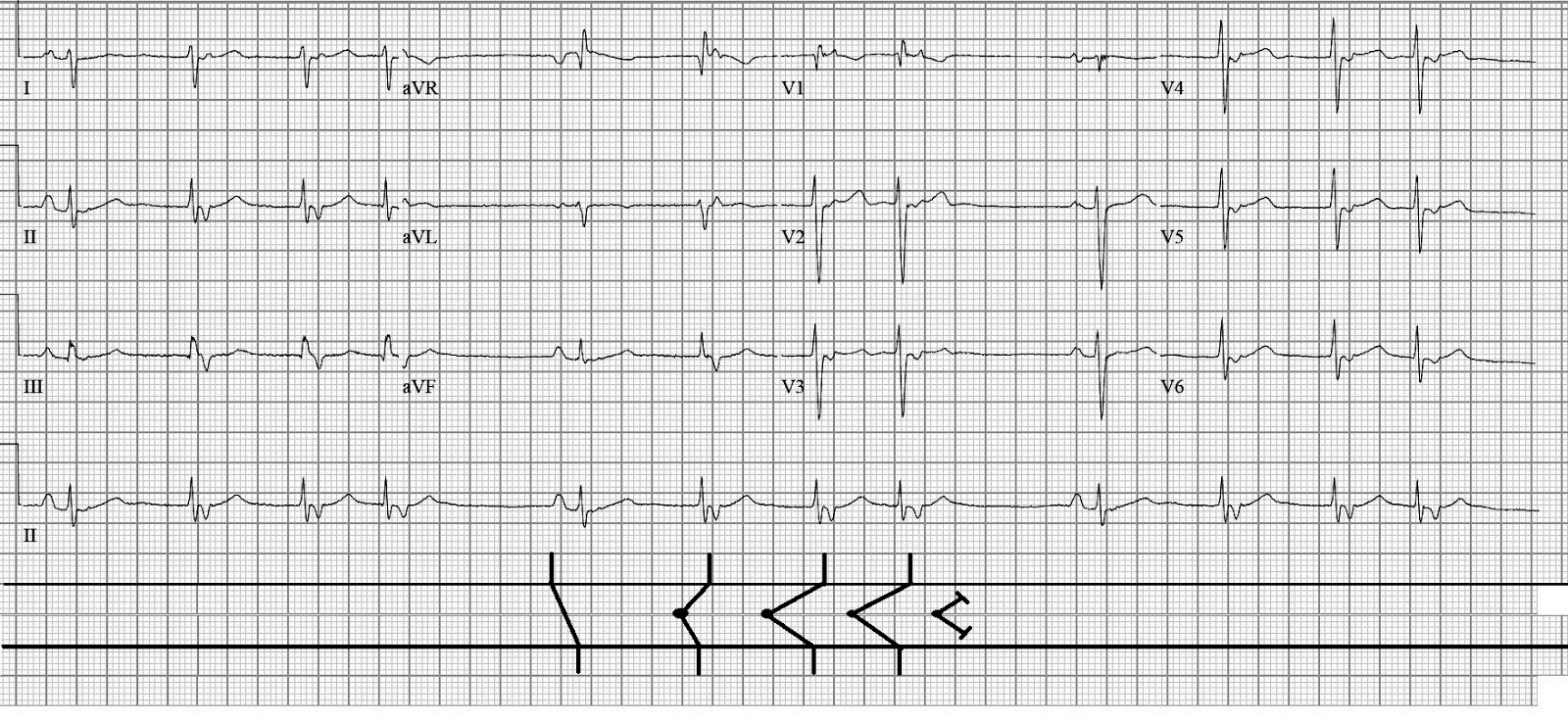 ecg rhythms  another irregular rhythm with a pattern