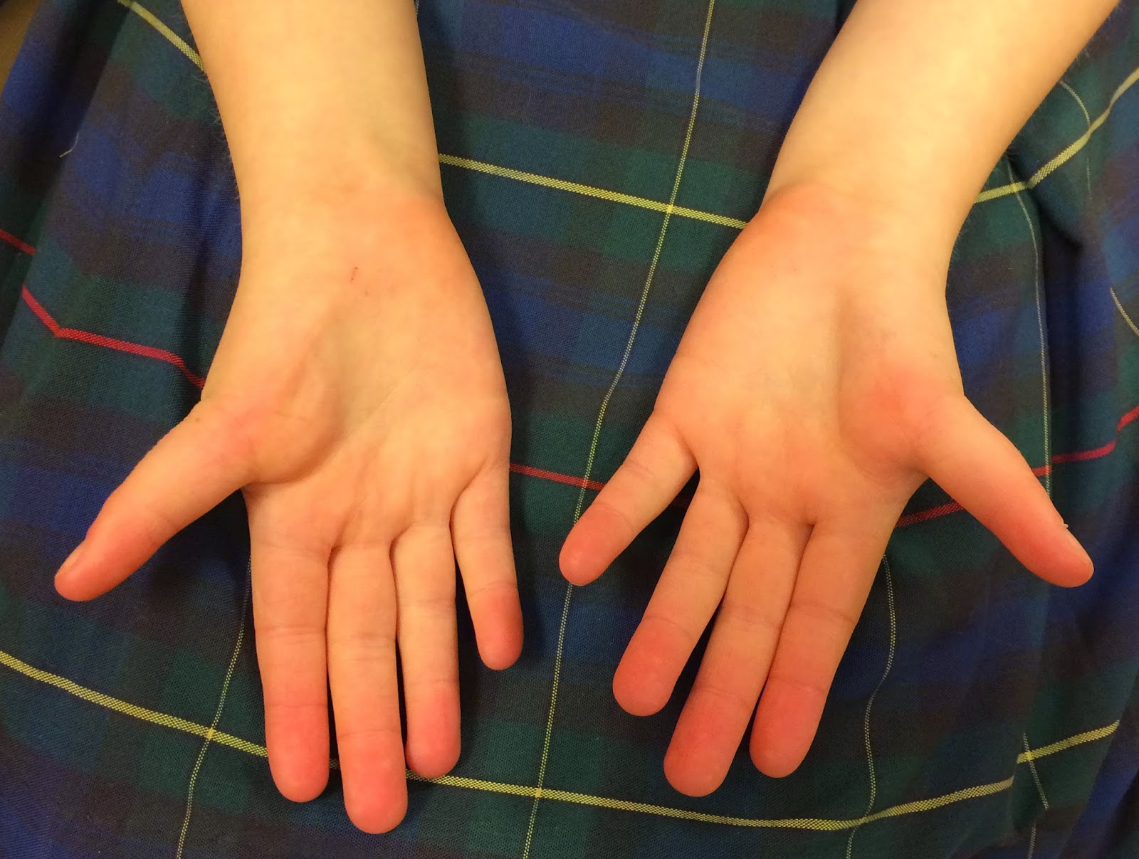 Underdeveloped Thumbs Congenital Hand And Arm Differences