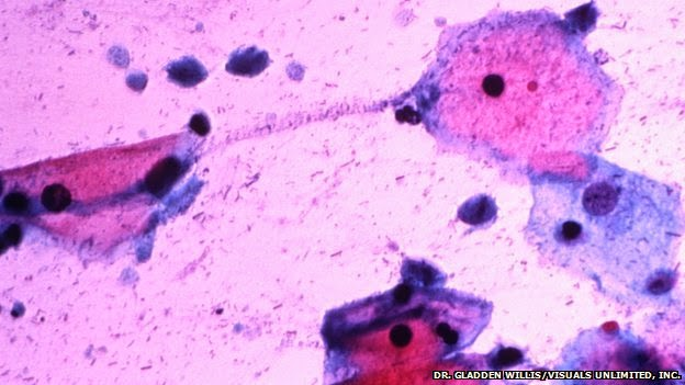 Prostate Cancer 'May Be A Sexually Transmitted Disease'