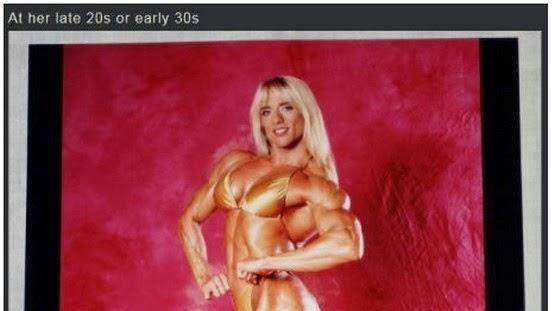 Inilah Keadaan Wajah Seorang Wanita Yang Menggunakan Steroid Selepas 20 Tahun