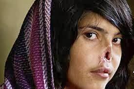El rostro de la afgana Aisha, desfigurado por su marido.