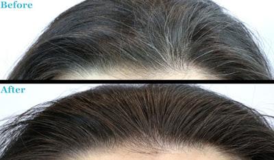 Menghitamkan Kembali Rambut Beruban Dini