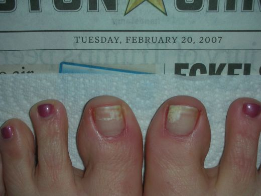 ACRYLIC NAILS: Types Nail Fungus
