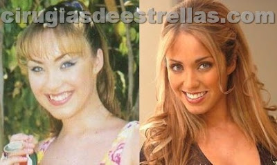 antes y despues de anahi