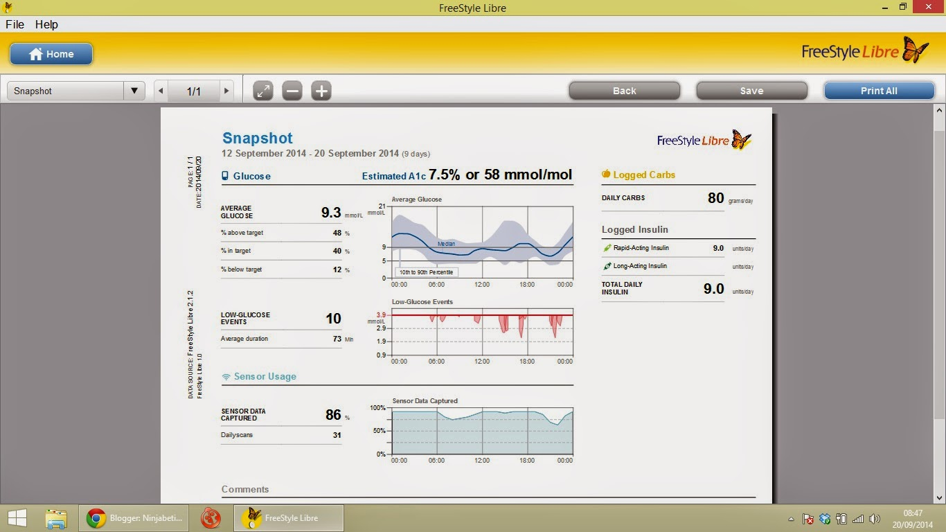 Freestyle Libre Data Download Ninjabetic