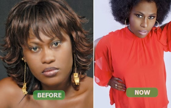 uche jombo nose surgery