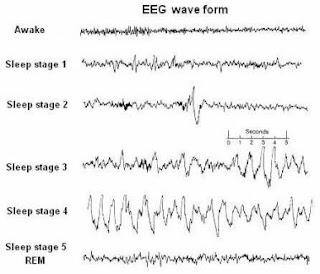 Unrefreshing Sleep in Fibromyalgia - verywellhealth.com