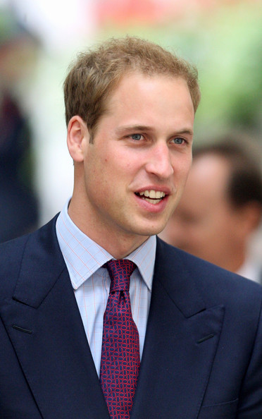 brendan fraser hair plugs. prince william hair plugs.
