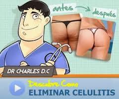 Factor Celulitis