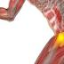 Fisioterapia na Bursite de Quadril