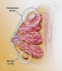 Image Obat Ampuh Untuk Mengobati Kanker Payudara