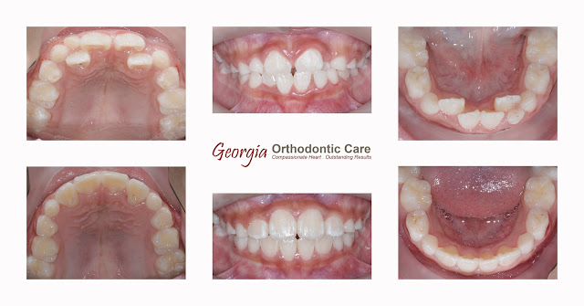 Early Orthodontic Treatment, Dacula, Buford, Lawrenceville, GA, Georgia