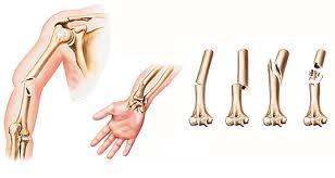 Tipuri de fractura, depistarea si tratamentul fracturilor