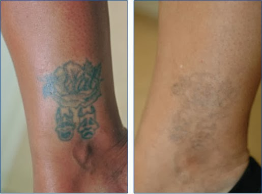 Natural tattoo removal for How to get rid of a tattoo at home