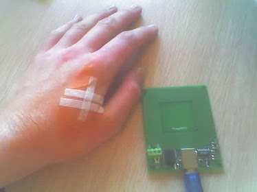 RFID implanted in a human's hand