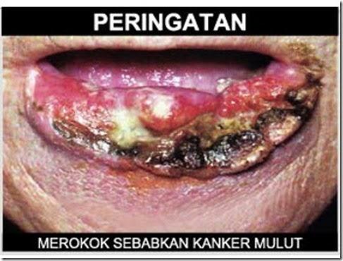 Solusi Pengobatan Penyakit Kanker Mulut Secara Alami