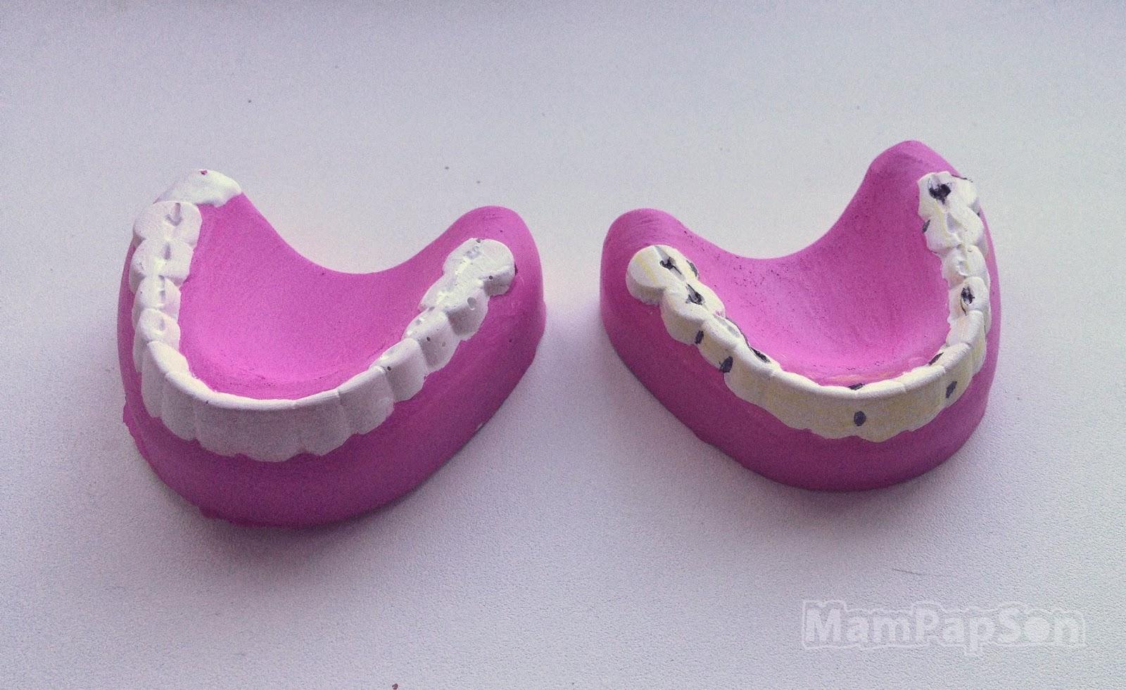 челюсти из гипса