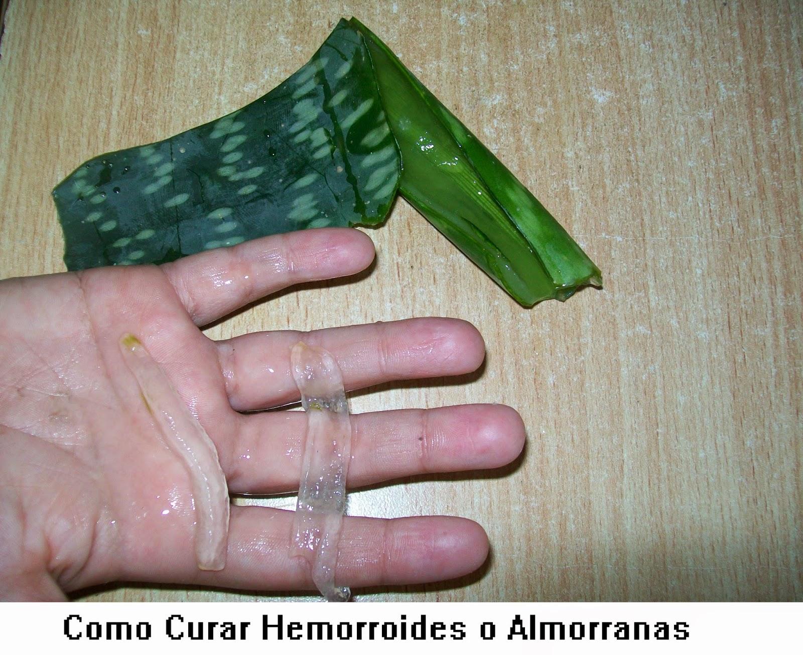 La tromboflebitis de las venas hipodérmicas de las extremidades superiores el tratamiento