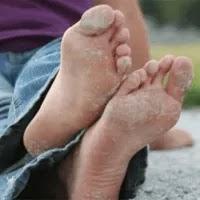 Un lugarcito para ti remedios caseros para pie de atleta - Eliminar hongos ducha ...