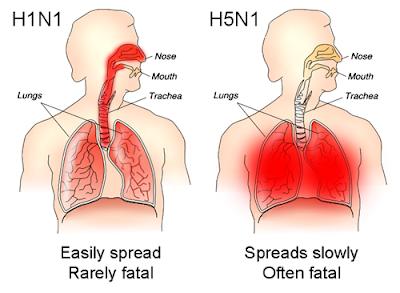 Tác hại của H1N1 và H5N1 trên cơ thể con người. Ảnh: Wikipedia.