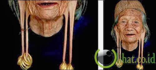 Telinga Memanjang