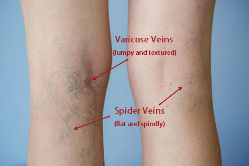 visible blue veins all over body